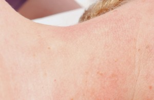 Skin Tag After - Vivacite Medi Spa