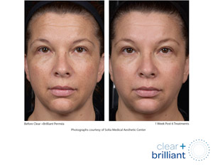 Clear + Brilliant Before and After
