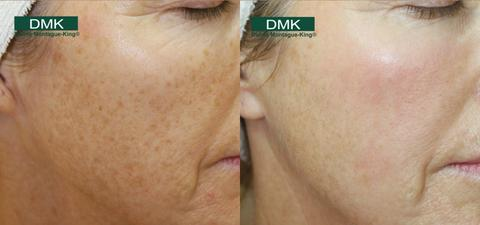 DMK Treatment Pigmentation Before and After